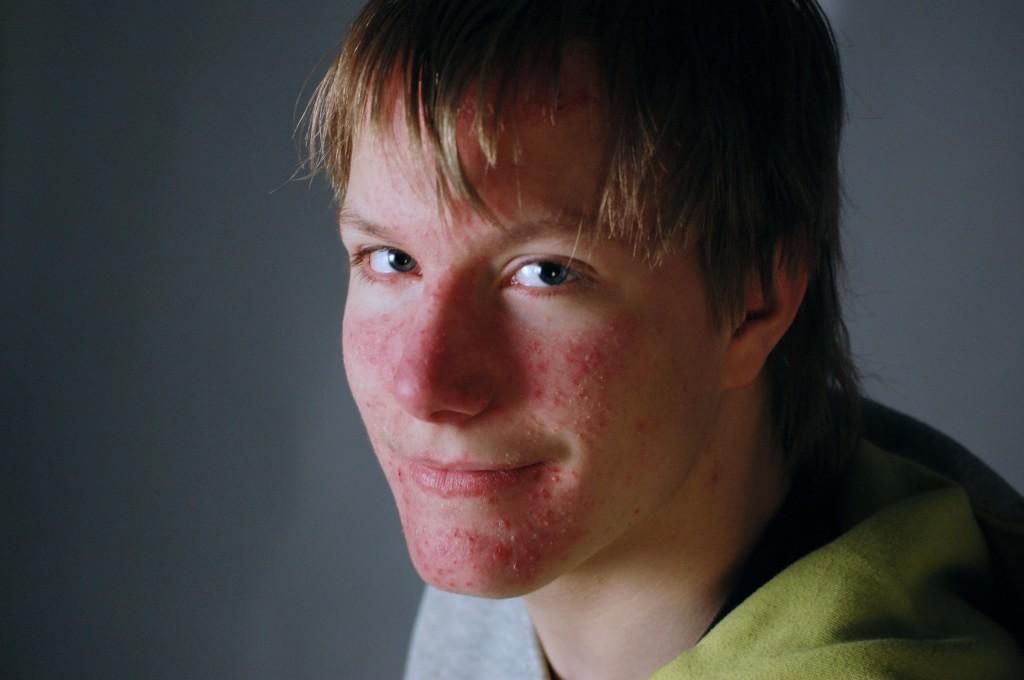 Jag (Viktor)